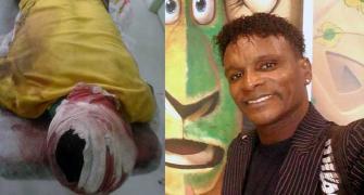 O performer Jacaré dos Patins sofre acidente na Dutra/RJ e irmão alerta aos fãs e amigos no Facebook.